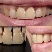 dent céramo métallique