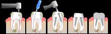 cout d un implant dentaire