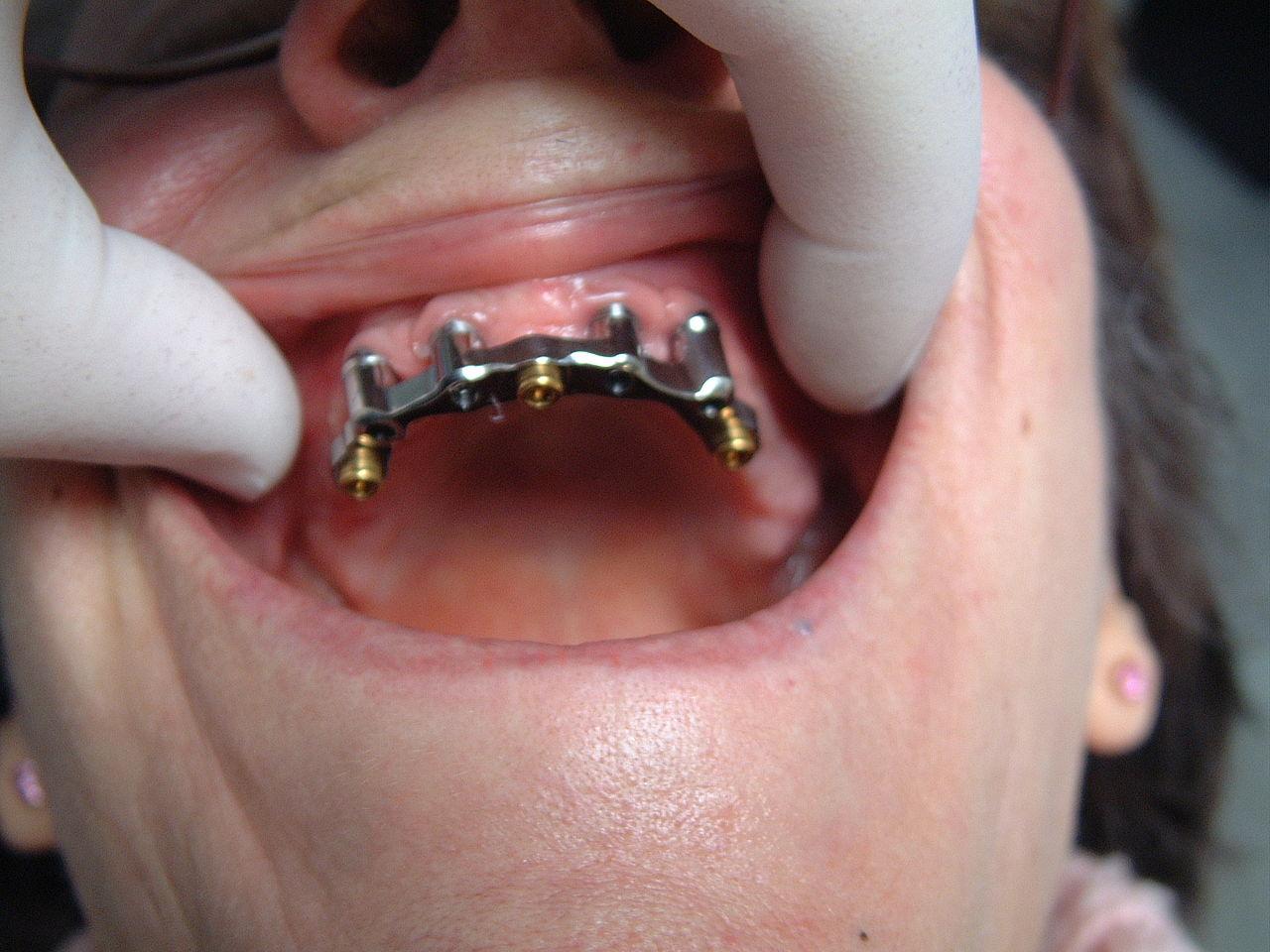 prix appareil dentaire lingual